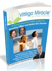 Vitiligo Miracle - Does It Work?