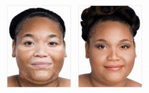 Vitiligo Miracle Reviews