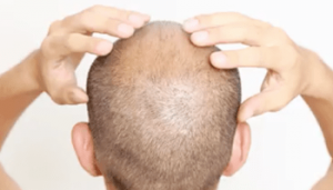 Revifol Hair Loss Review - Safe To Use?